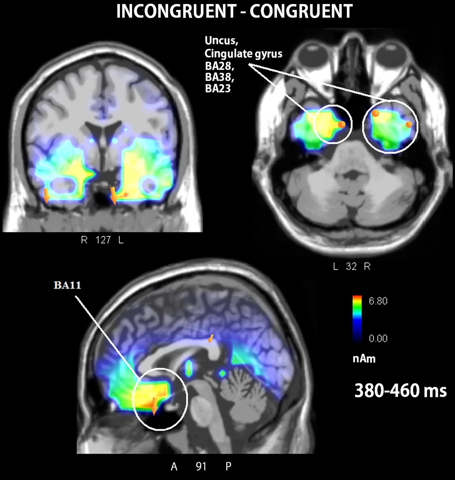 Analisi sul cervello